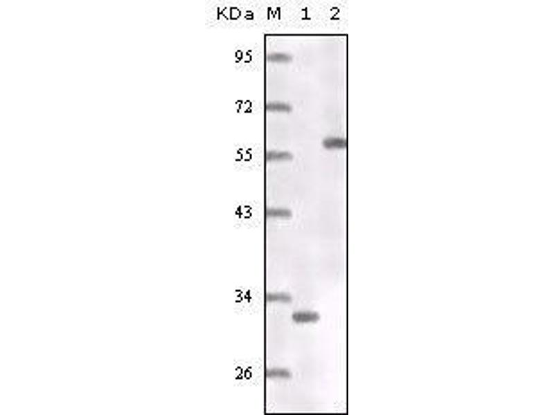 Western Blotting (WB) image for anti-ER antibody (ABIN969110)