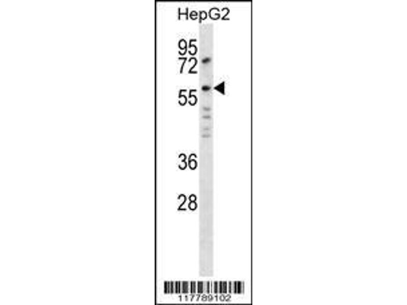 Western Blotting (WB) image for anti-Angiopoietin 2 (ANGPT2) (AA 404-432), (C-Term) antibody (ABIN654062)