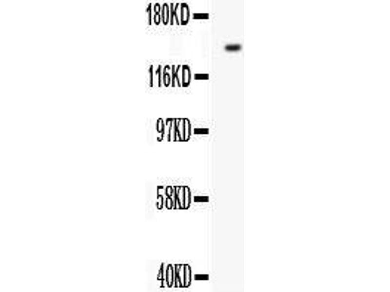 Western Blotting (WB) image for anti-Fms-Related tyrosine Kinase 1 (Vascular Endothelial Growth Factor/vascular Permeability Factor Receptor) (FLT1) (AA 278-298), (N-Term) antibody (ABIN3042978)