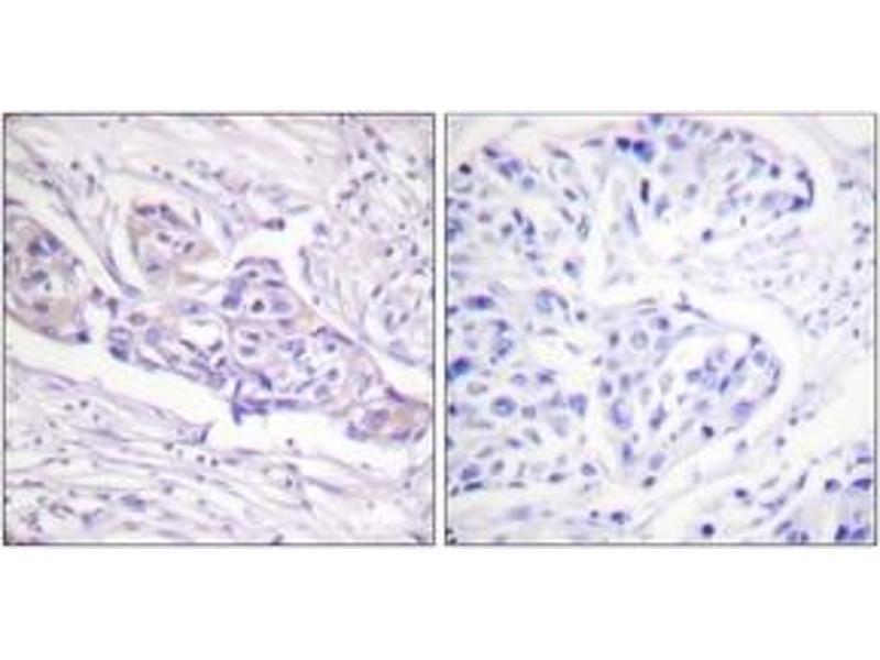 Immunohistochemistry (IHC) image for anti-FOXO1 antibody (Forkhead Box O1) (pSer329) (ABIN1531321)
