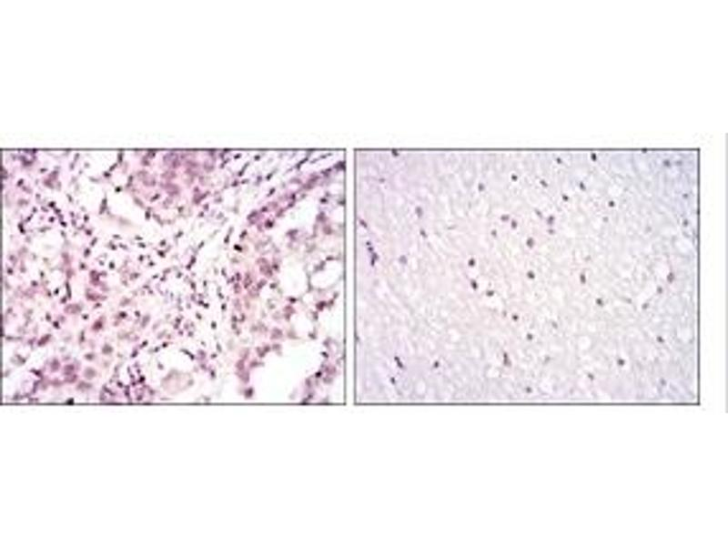 Immunohistochemistry (IHC) image for anti-Activating Transcription Factor 2 (ATF2) antibody (ABIN1105459)