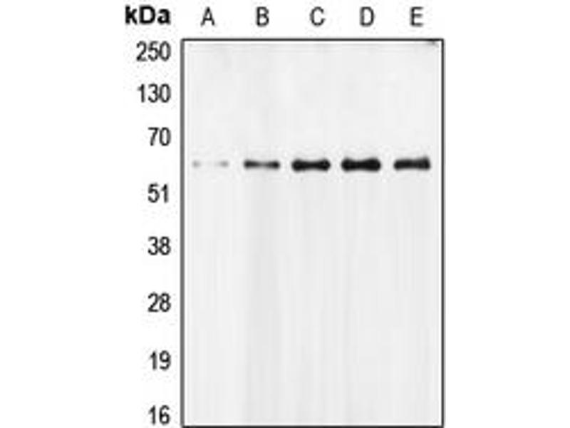 Western Blotting (WB) image for anti-Apoptosis-Inducing Factor, Mitochondrion-Associated, 1 (AIFM1) (N-Term) antibody (ABIN2707315)