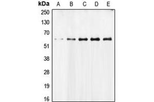 Image no. 3 for anti-Apoptosis-Inducing Factor, Mitochondrion-Associated, 1 (AIFM1) (N-Term) antibody (ABIN2707315)