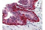 Immunohistochemistry (Paraffin-embedded Sections) (IHC (p)) image for anti-Ribosomal Protein S6 Kinase, 90kDa, Polypeptide 1 (RPS6KA1) (N-Term) antibody (ABIN615401)