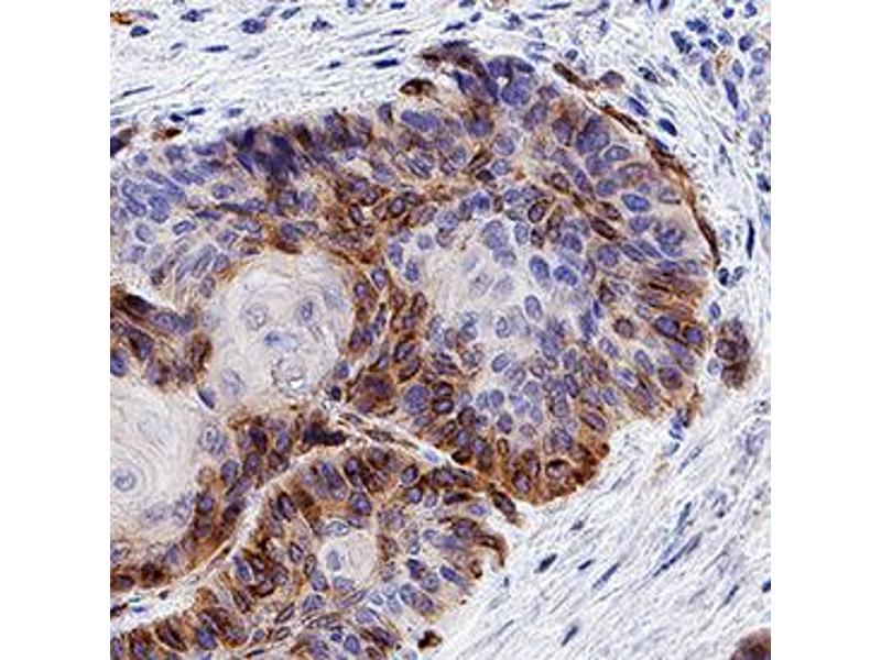 Immunohistochemistry (IHC) image for anti-Chemokine (C-X-C Motif) Receptor 7 (CXCR7) antibody (ABIN4900748)