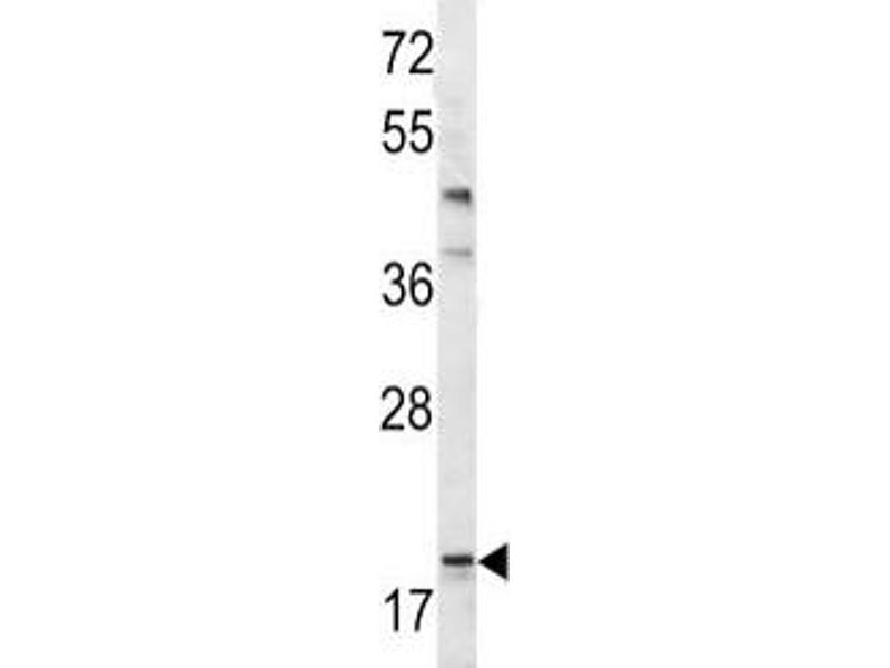 Western Blotting (WB) image for anti-BAD antibody (BCL2-Associated Agonist of Cell Death) (AA 92-127) (ABIN3030135)