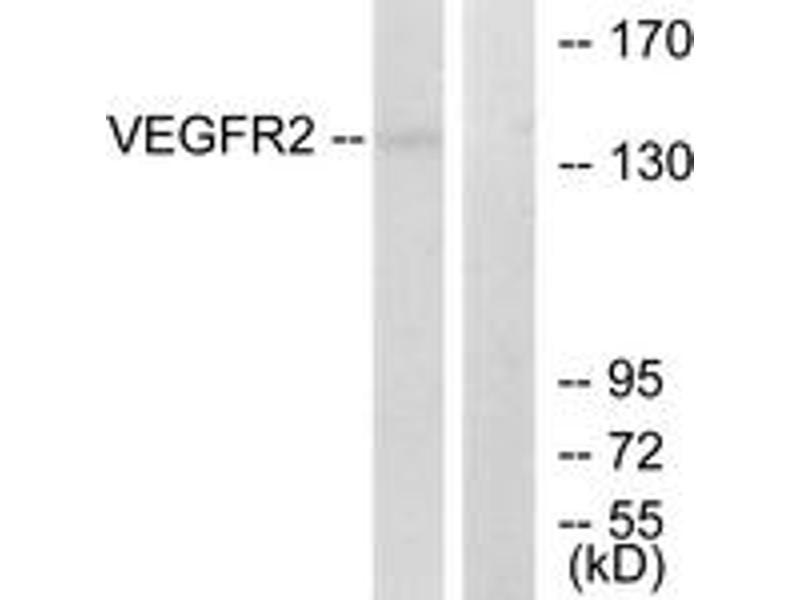 Western Blotting (WB) image for anti-Kinase insert Domain Receptor (A Type III Receptor tyrosine Kinase) (KDR) (AA 1180-1229) antibody (ABIN1533037)