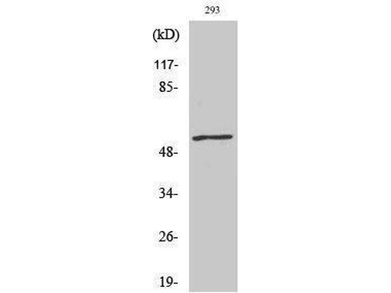 Western Blotting (WB) image for anti-V-Myc Myelocytomatosis Viral Oncogene Homolog (Avian) (MYC) (pThr58) antibody (ABIN3181968)