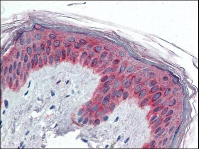 Immunohistochemistry (Paraffin-embedded Sections) (IHC (p)) image for anti-Vav 3 Oncogene (VAV3) (Internal Region) antibody (ABIN614934)