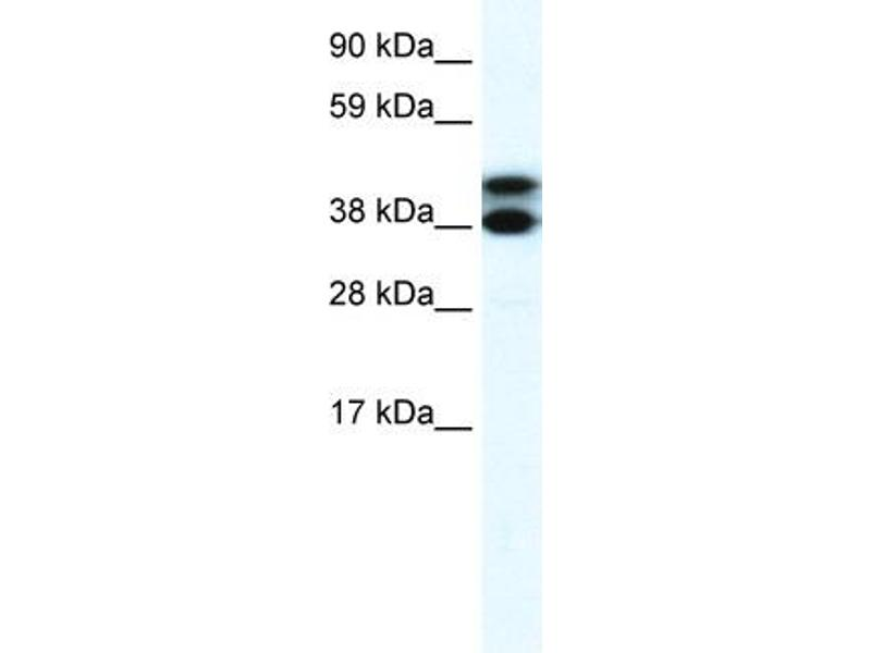 Western Blotting (WB) image for anti-Tripartite Motif Containing 13 (TRIM13) (Middle Region) antibody (ABIN182939)