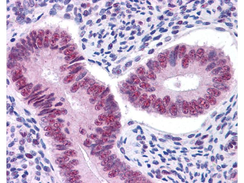 Immunohistochemistry (IHC) image for anti-Signal Transducer and Activator of Transcription 3 (Acute-Phase Response Factor) (STAT3) (Middle Region) antibody (ABIN2792239)