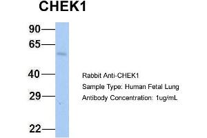Image no. 1 for anti-Checkpoint Kinase 1 (CHEK1) (Middle Region) antibody (ABIN2779737)