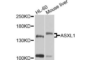 Image no. 1 for anti-Additional Sex Combs Like 1 (Drosophila) (ASXL1) antibody (ABIN4902962)