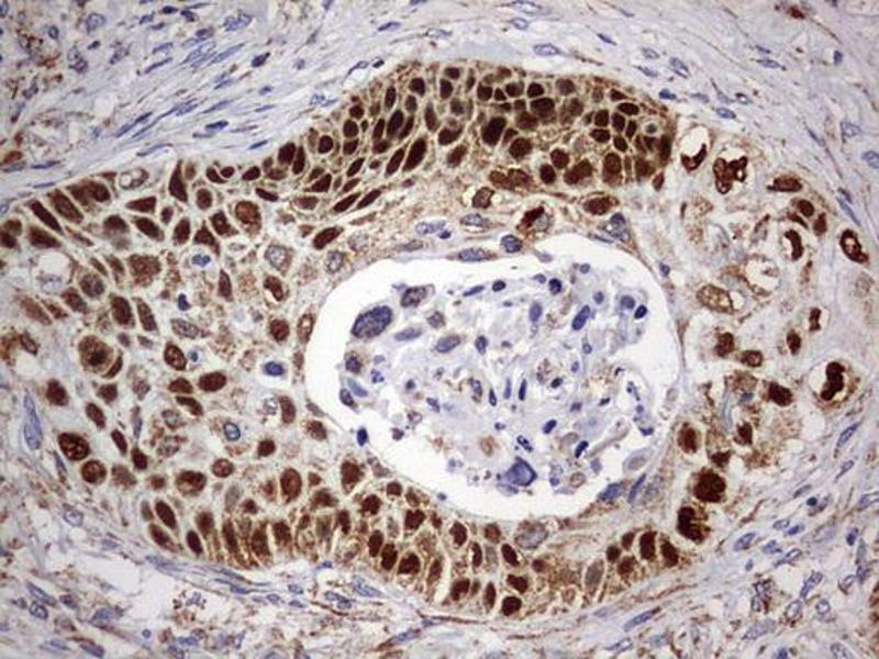 Immunohistochemistry (IHC) image for anti-Tumor Protein P63 (TP63) antibody (ABIN2673817)
