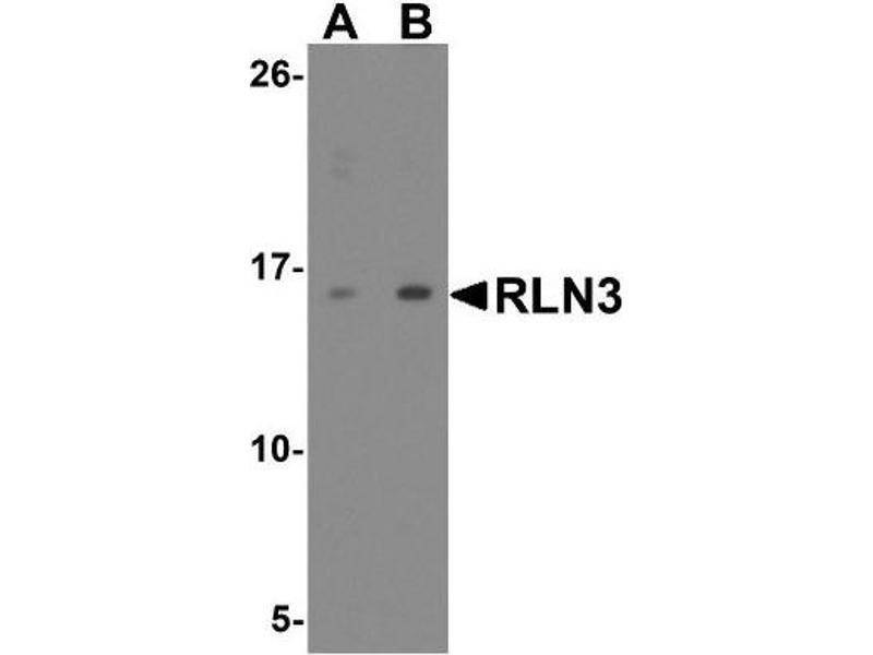 Western Blotting (WB) image for anti-Relaxin 3 (RLN3) (Center) antibody (ABIN4349931)