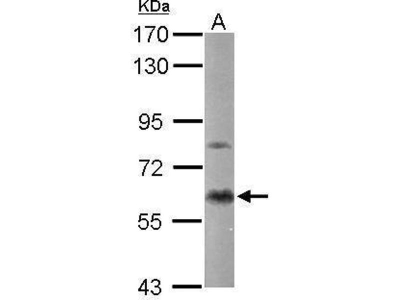 Western Blotting (WB) image for anti-PKC alpha antibody (Protein Kinase C, alpha) (ABIN2495479)