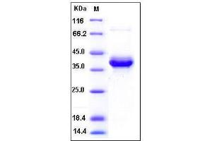 Image no. 1 for S100 Calcium Binding Protein A4 (S100A4) (AA 1-101) protein (Fc Tag) (ABIN2002274)
