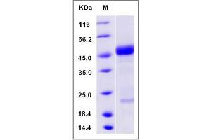 Image no. 1 for Advanced Glycosylation End Product-Specific Receptor (AGER) (AA 1-344), (Mature) (Active) protein (ABIN2004453)