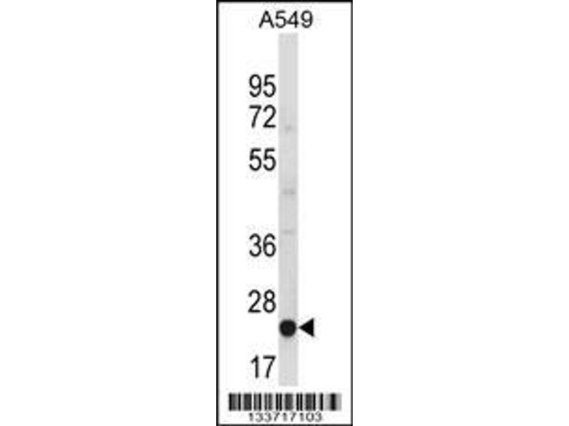 Western Blotting (WB) image for anti-MBL2 antibody (Mannose-Binding Lectin (Protein C) 2, Soluble) (C-Term) (ABIN2445455)