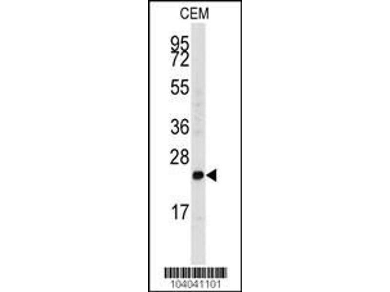Western Blotting (WB) image for anti-FGF4 antibody (Fibroblast Growth Factor 4) (C-Term) (ABIN2436796)