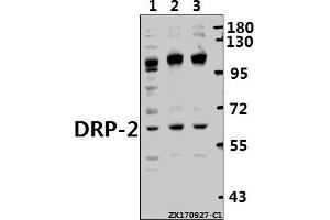 Image no. 1 for anti-Dystrophin Related Protein 2 (DRP2) (AA 468-532) antibody (ABIN6713021)