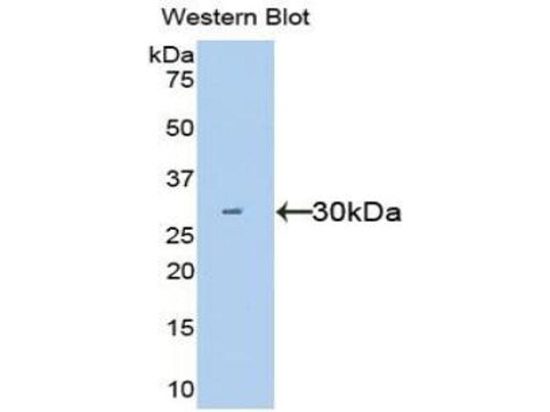 Hepatocyte Growth Factor (Hepapoietin A, Scatter Factor) (HGF) ELISA Kit (4)