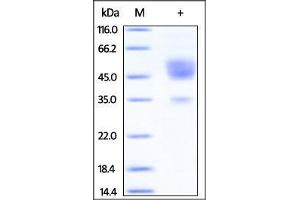 Image no. 1 for Teratocarcinoma-Derived Growth Factor 1 (TDGF1) (AA 31-172) protein (Fc Tag) (ABIN2180905)