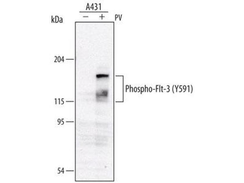 image for anti-Fms-Related tyrosine Kinase 3 (FLT3) (pTyr591) antibody (ABIN958009)