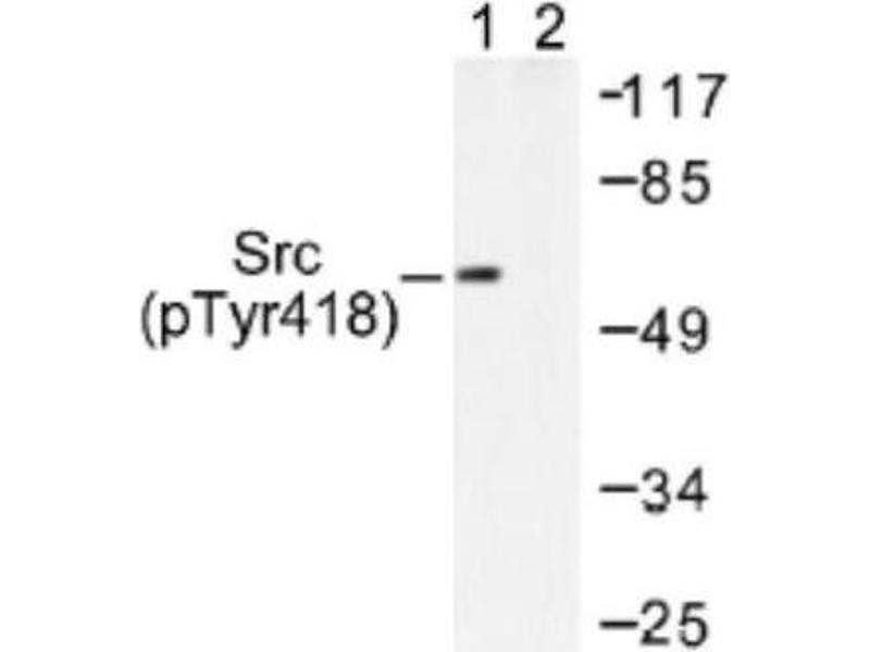 Western Blotting (WB) image for anti-V-Src Sarcoma (Schmidt-Ruppin A-2) Viral Oncogene Homolog (Avian) (SRC) (pTyr418) antibody (ABIN408484)