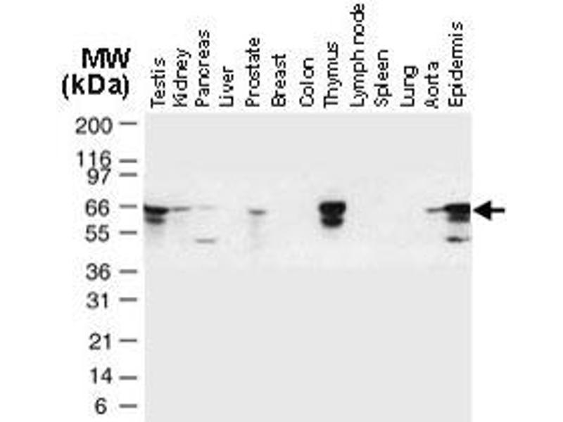 Western Blotting (WB) image for anti-TNF Receptor-Associated Factor 6 (TRAF6) antibody (ABIN537432)