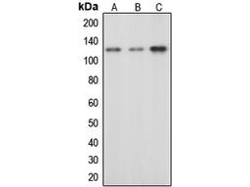Western Blotting (WB) image for anti-CBL antibody (Cas-Br-M (Murine) Ecotropic Retroviral Transforming Sequence) (pTyr674) (ABIN2705618)