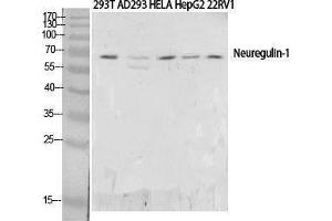Western Blotting (WB) image for anti-Neuregulin 1 antibody (NRG1) (N-Term) (ABIN3187835)
