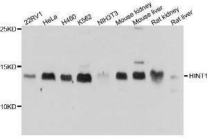 Western Blotting (WB) image for anti-Histidine Triad Nucleotide Binding Protein 1 (HINT1) antibody (ABIN4903899)
