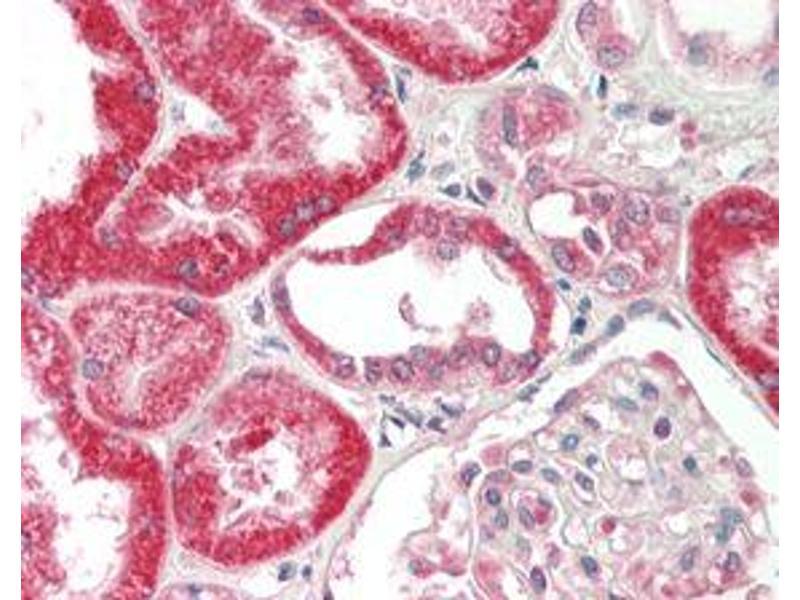 Immunohistochemistry (IHC) image for anti-FGF19 antibody (Fibroblast Growth Factor 19) (ABIN1169397)