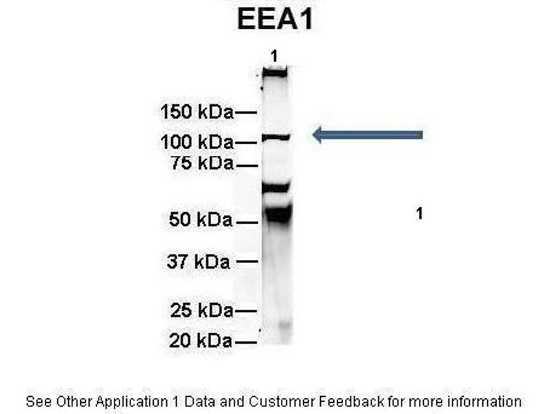 Immunoprecipitation (IP) image for anti-Early Endosome Antigen 1 (EEA1) (N-Term) antibody (ABIN2779263)