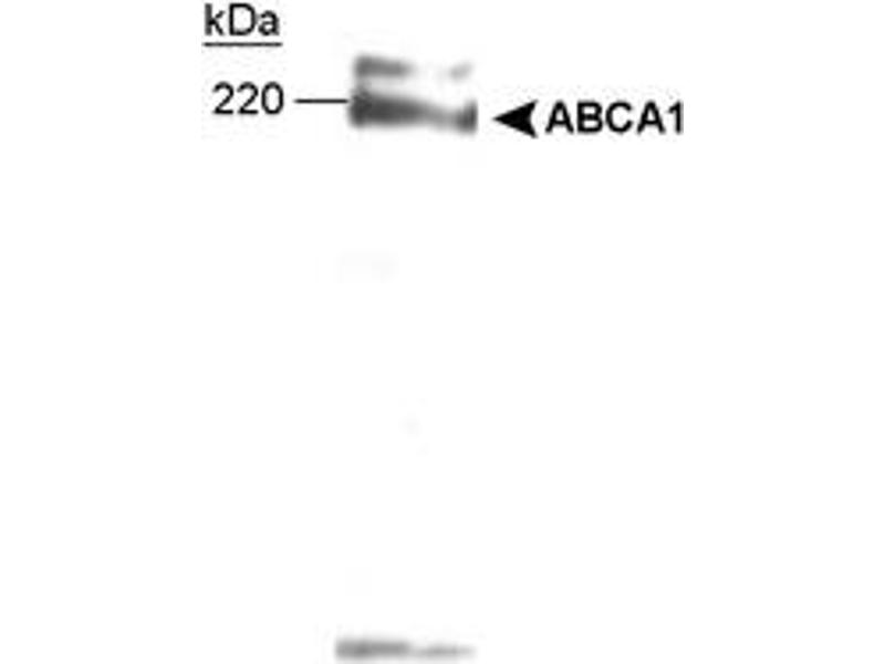 Western Blotting (WB) image for anti-ATP-Binding Cassette, Sub-Family A (ABC1), Member 1 (ABCA1) (AA 1100-1300) antibody (ABIN152883)