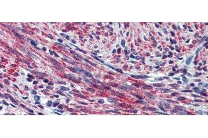 Image no. 4 for anti-Periostin, Osteoblast Specific Factor (POSTN) (Middle Region) antibody (ABIN2776883)