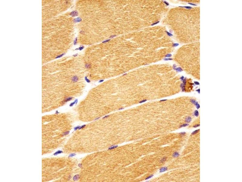 Immunohistochemistry (IHC) image for anti-Dishevelled, Dsh Homolog 1 (Drosophila) (DVL1) (AA 442-470) antibody (ABIN5534208)