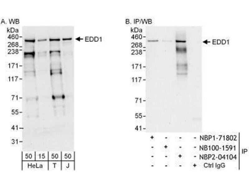 Image no. 4 for anti-Ubiquitin Protein Ligase E3 Component N-Recognin 5 (UBR5) (AA 600-650) antibody (ABIN151138)
