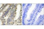 Immunohistochemistry (IHC) image for anti-Tumor Necrosis Factor antibody (TNF) (ABIN1533583)