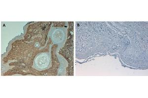 Image no. 3 for anti-Collagen, Type I (COL1) antibody (HRP) (ABIN5596823)