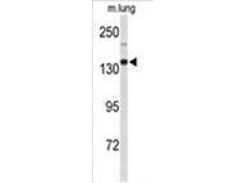 Western Blotting (WB) image for anti-Xanthine Dehydrogenase (XDH) (AA 213-242), (N-Term) antibody (ABIN955594)