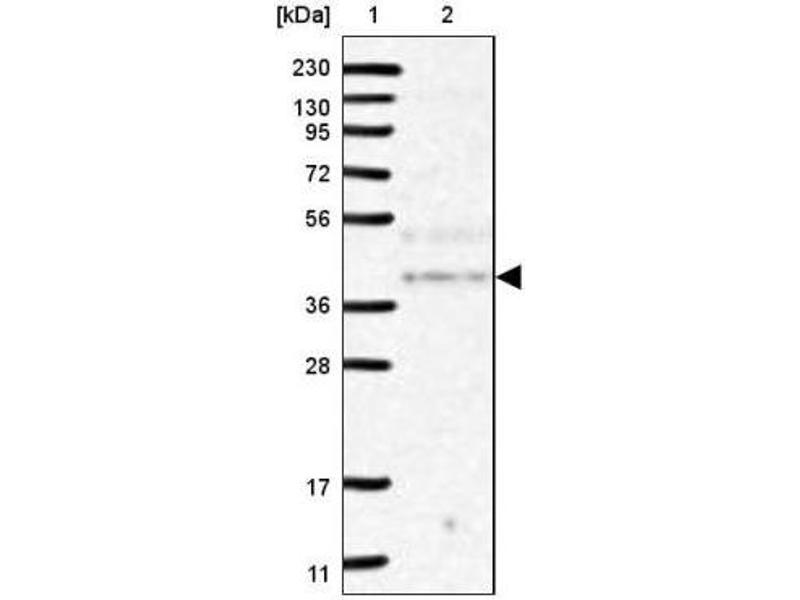 Western Blotting (WB) image for anti-Non-SMC Element 4 Homolog A (S. Cerevisiae) (NSMCE4A) antibody (ABIN4340769)