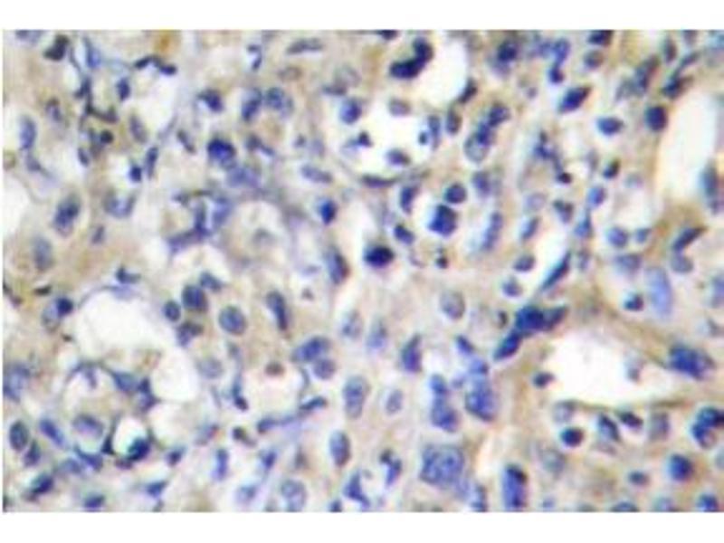 image for anti-Prothrombin antibody (Coagulation Factor II (thrombin)) (ABIN317606)