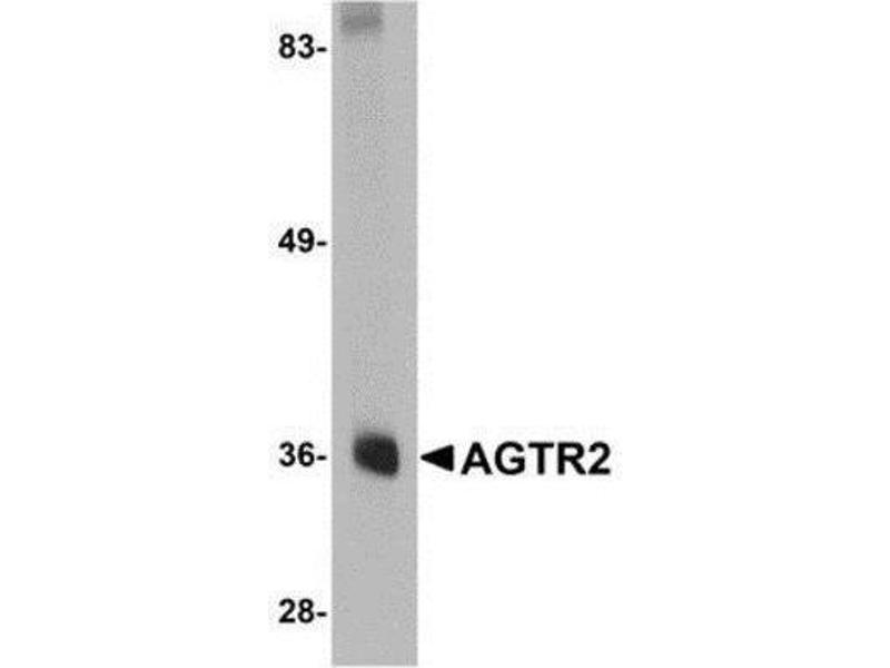 Western Blotting (WB) image for anti-Angiotensin II Receptor, Type 2 (AGTR2) (Center) antibody (ABIN4278731)