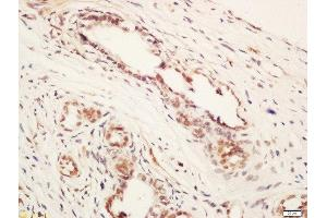 Immunohistochemistry (Paraffin-embedded Sections) (IHC (p)) image for anti-Armadillo Repeat Containing, X-Linked 1 (ARMCX1) (AA 260-310) antibody (ABIN760796)