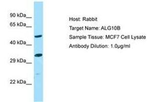 Image no. 1 for anti-Asparagine-Linked Glycosylation 10, alpha-1,2-Glucosyltransferase Homolog B (Yeast) (ALG10B) (AA 179-228) antibody (ABIN6750149)