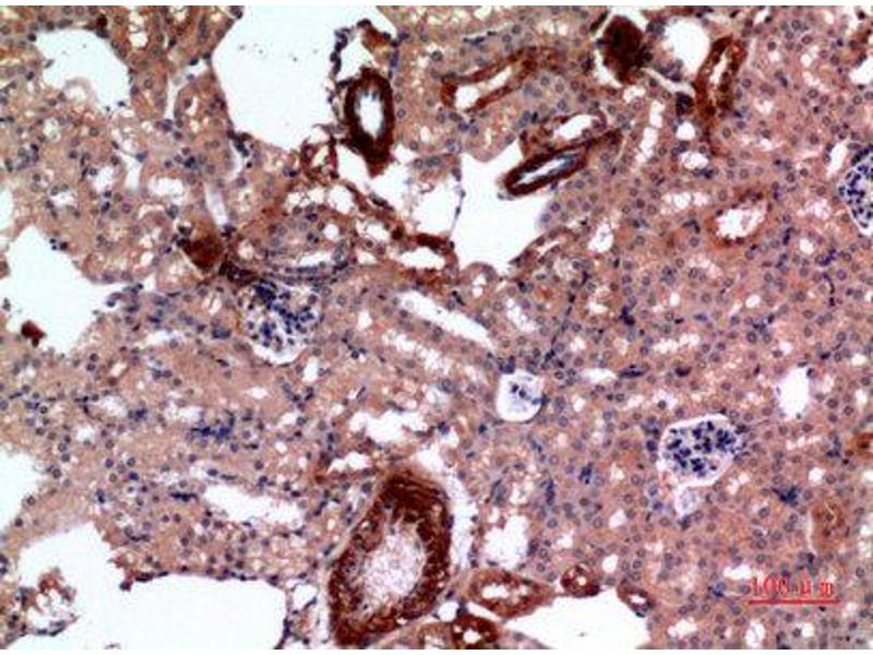 Immunohistochemistry (IHC) image for anti-E2F Transcription Factor 4, P107/p130-Binding (E2F4) antibody (ABIN3187838)