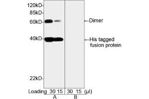 Image no. 4 for anti-His Tag antibody (ABIN300028)