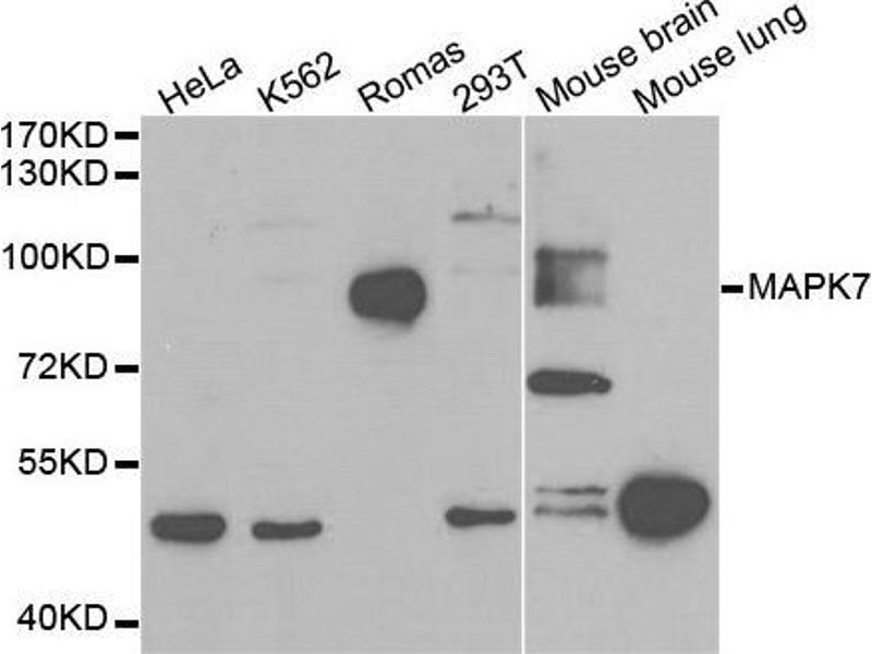 Western Blotting (WB) image for anti-MAPK7 antibody (Mitogen-Activated Protein Kinase 7) (ABIN3022945)
